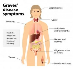 symptoms-of-graves-disease